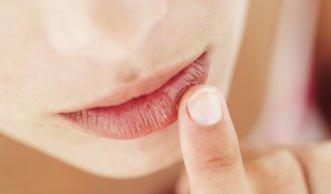 Zum Küssen schön: Diese Hausmittel helfen gegen spröde Lippen